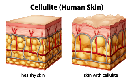 cellulite product category image